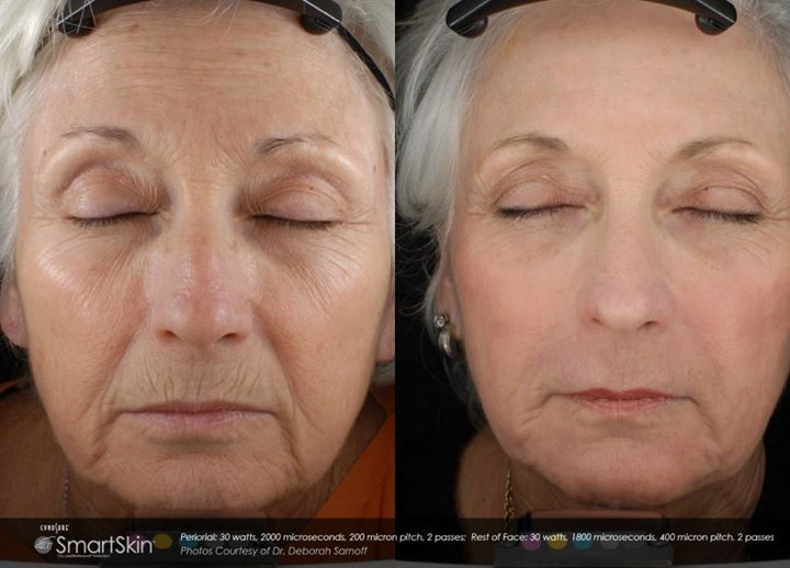 Timeline Photos Bodylase Skin Spa Laser Skin Resurfacing Fractional Co2 Laser Co2 Laser Resurfacing