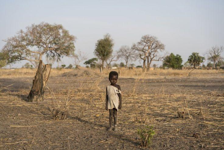 Un niño posa para una fotografía después de acabar el tratamiento incluido en un programa terapéutico, a las afueras de Udhaba, Sudán.