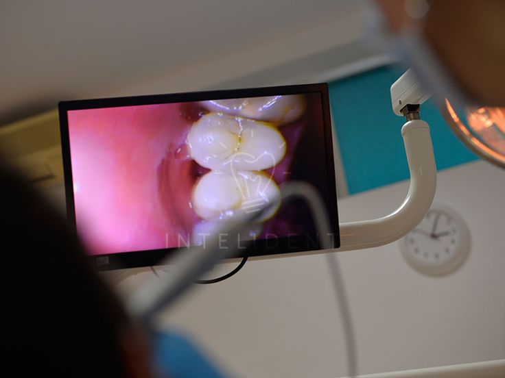 Meilleures couronnes à l'étranger , en Roumanie! Nous vous invitons à consulter notre web site  ici et contactez-nous immédiatement!http://www.intermedline.com/dental-clinics-romania/ #tourismedentaire #tourismedentaireenRoumanie #voyagedentaire #voyagedentaireenRoumanie #cliniquedentaire #cliniquedentaireenRoumanie #dentistes #dentistesenRoumanie #soinsdentaires #soinsdentairesenRoumanie #couronnesdentaires #couronnesdentairesenRoumanie