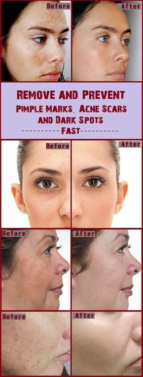 Rub This On Any Scar, Wrinkle Or Spot On Your Skin And Look As They Disappear Within Minutes!