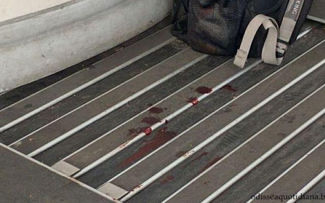 #RomaLido: Come rimuovere le macchie pi ostinate Tra le prime immagini del 2016 non può mancare questa. A prima vista sembrerebbero macchie di sangue, ma sicuramente non sarà così. Quello che è certo è che non si può mandare in giro un treno che se #trasportopubblico #roma #atac