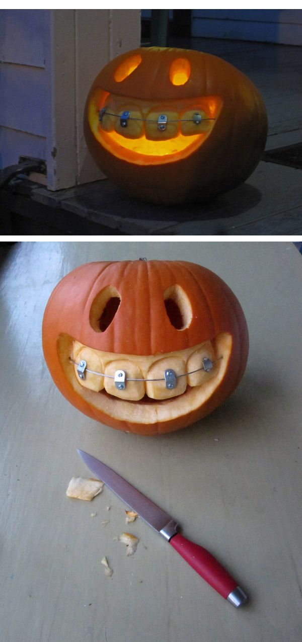 Pumpkin with braces ( https://ingobutsch.com/44766/397736/this-and-that/pumpkin-with-braces ) #dentist