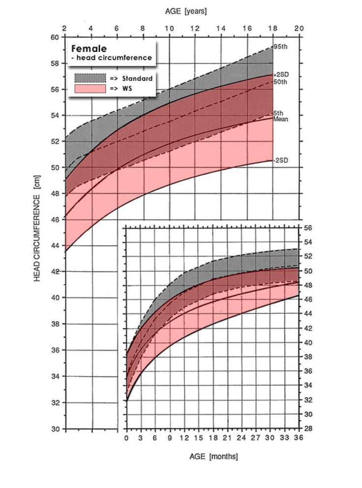 Female Growth Charts for Williams Syndrome - head circumference - height weight chart