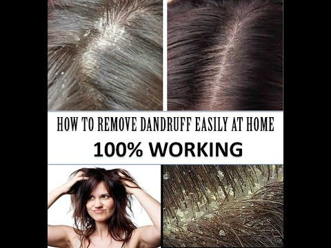 How to Remove Dandruff at Home - 100% WORKING - Hair Loss Treatment, Hai...