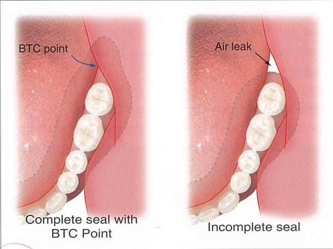 Mandibular Suction - Effective Denture. Buccal mucosa and Tongue side contact point.