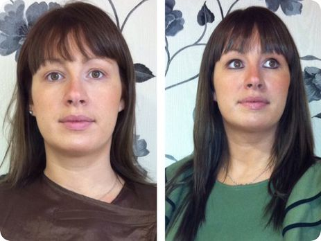 Fine hair before extensions and after a full head application of dark brown - luscious and natural looking!