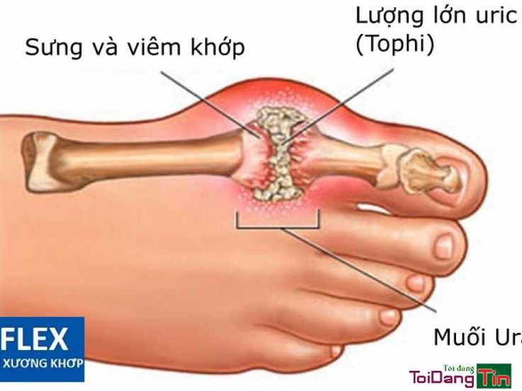 (Viện Gút) Gút là một bệnh rối loạn về chuyển hóa liên quan đến việc tăng sản xuất hoặc giảm đào thải chất acid uric trong cơ thể. Có thể nói nguyên nhân trực tiếp gây bệnh gút là sự lắng đọng vi tinh thể muối urate natri tại các cơ quan trong cơ thể như: tại các khớp, tại tim, tại thận,...  Vi tinh thể muối urate natri là sản phẩm của acid uric kết tủa thành khi gặp điều kiện thuận lợi. Vì một lý do nào đó, hàm lượng purin trong cơ thể tăng, quá trình chuyển hóa chúng thành acid uric tăng…