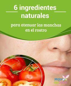 6 ingredientes naturales para atenuar las manchas en el rostro   Las propiedades de los siguientes ingredientes naturales te servirán para atenuar las manchas en el rostro. ¡Conócelos!