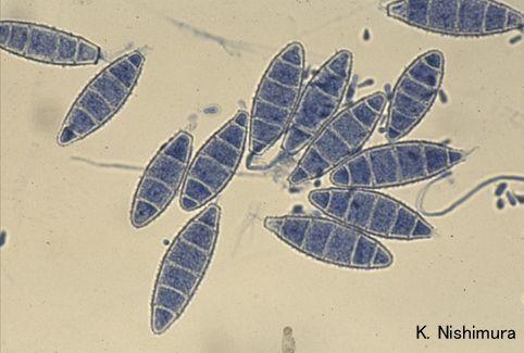 Microsporum gypseum httpssmediacacheak0pinimgcom736xcdf896