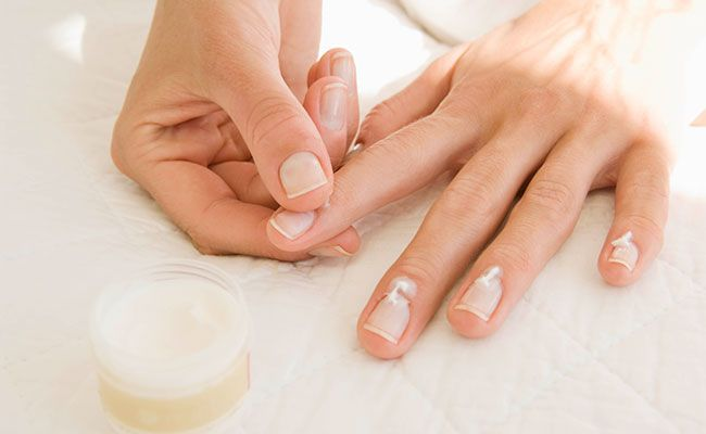 3 Surprisingly Simple Ways To Prevent Hangnails