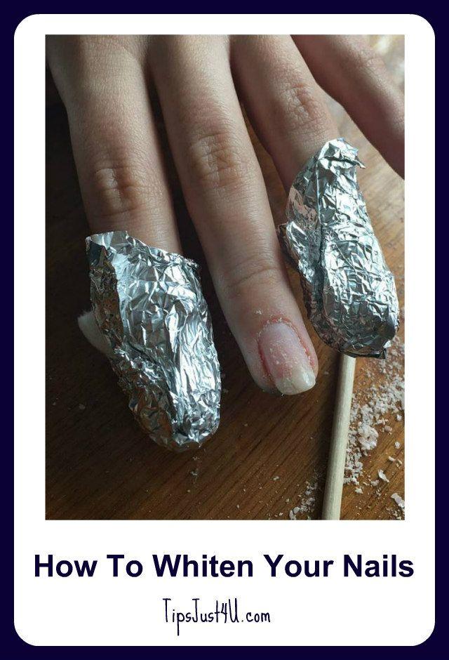 Wie Sie Ihre Nägel bleichen. Haben sich Ihre Nägel von zu viel Nagellack verdunkelt? Ein DI … – Bloggers For Life