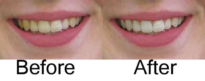 Whitening Teeth in photoshop