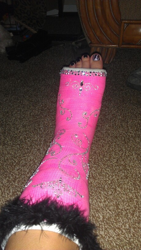 17 best images about decorations for leg cast on pinterest for Arm cast decoration ideas