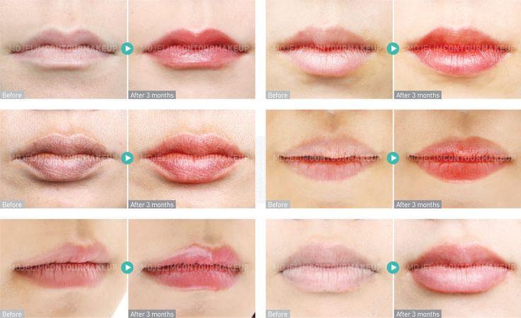 唇 関連アートメイクサービス