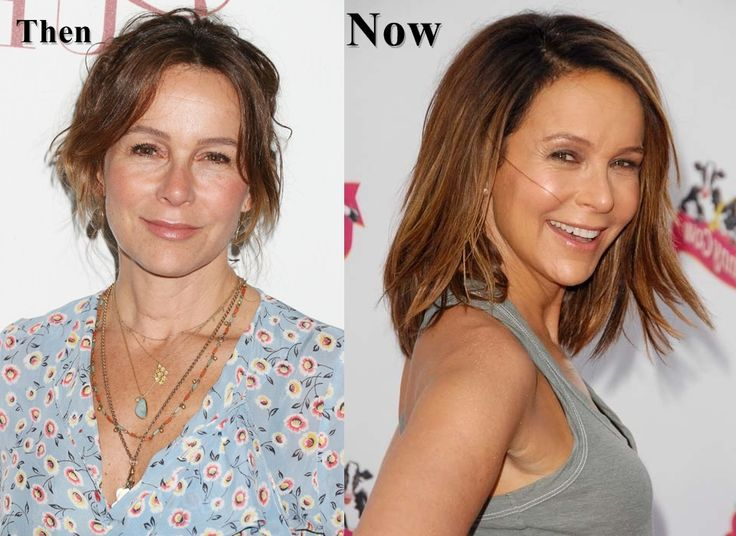 Jennifer Grey an American famous actress has done some plastic surgeries with her face ...