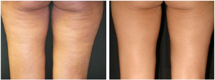 Cellulite On Thighs Is there a cure?