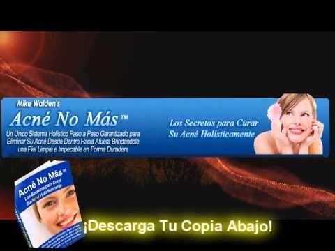 Acne no mas la manera de deshacerse de las espinillas del acné - http://solucionparaelacne.org/blog/acne-no-mas-la-manera-de-deshacerse-de-las-espinillas-del-acne/