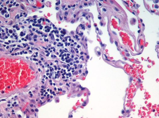 Image is of H&E (haematoxylin and eosin) stained lung tissue sample taken from an end-stage emphysema patient. Cell nuclei are blue-purple, red blood cells are red, other cell bodies and extracellular material are pink, and air spaces are white.