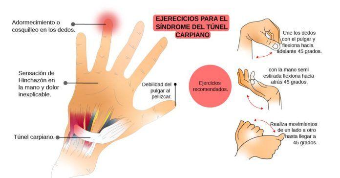 tunel carpiano aliviar sintomas de diabetes