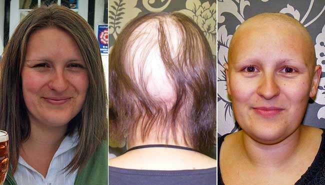 Alopecia UK's Communications Manager, Amy Johnson, does her bit for awareness