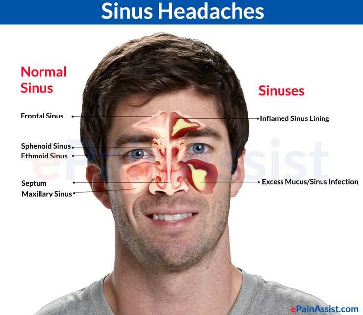 Home Remedies For Severe Sinus Headache
