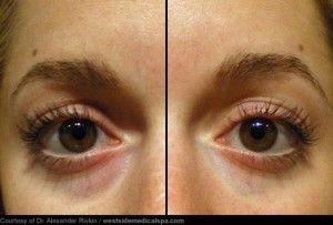 4 Nutritional Causes of Sunken Eyelids and Dark Eye Circles. Dehydration, Iron Deficiency, Inadequate Vitamin C, Vitamin K Deficiency,
