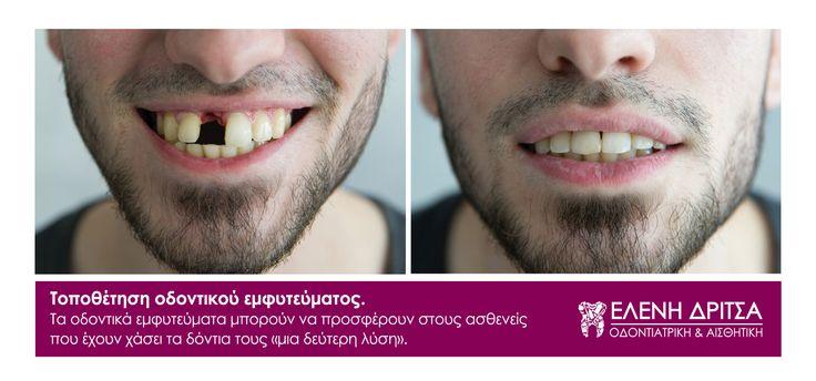 Τοποθέτηση οδοντικού εμφυτεύματος.  photo © Vicky Lafazani - Roligraphics / Graphic Designer