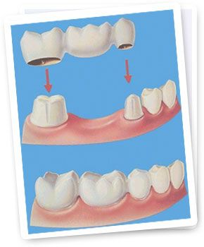 Crowns and Bridges to restore missing teeth