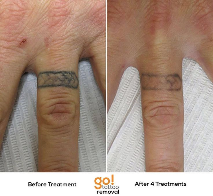 798 Best Tattoo Removal In Progress Images On Pinterest