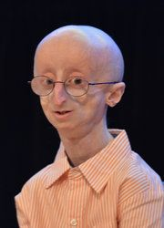 Sam Berns, 17, passes from progeria...his short life is an inspiration to make every day count.