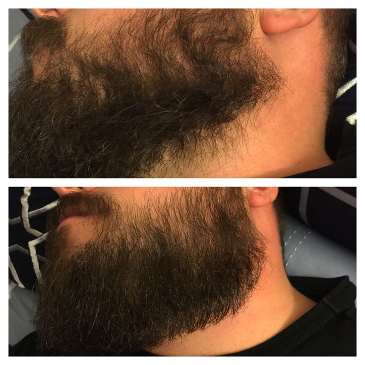 Use This Oil Before Coloring Your Hair: Before And After Using World Famous Lumberjack's Beard Oil