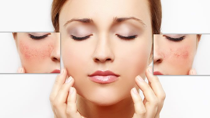 Find the best way to get rid of rosacea redness on face permanently. Home remedies like honey and vinegar can also be used to cure rosacea naturally.