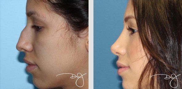 rhinoplasty brazil - Google Search