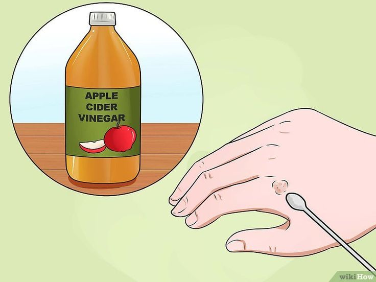 How to Get Rid of Warts on Hands: 13 Steps (with Pictures) http://www.wartalooza.com/treatments/trichloroacetic-acid