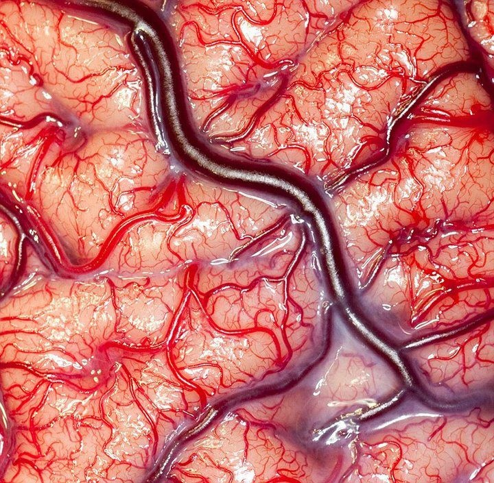 Close-up image of a living human brain has won the Wellcome Prize for microscope photography after it was taken during a surgical procedure to treat a patient with epilepsy. Taken by Robert Ludlow of UCL's Institute of Neurology, the image is a rare shot of a living brain - a view normally only seen by neurosurgeons, showing veins, arteries and grey matter flushed pink with blood.