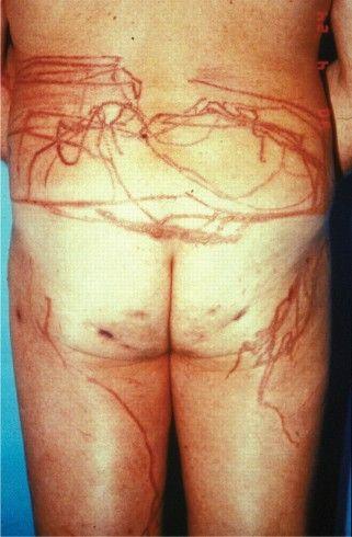 Vagina-Wissen Was der Intimgeruch über Deine Vagina