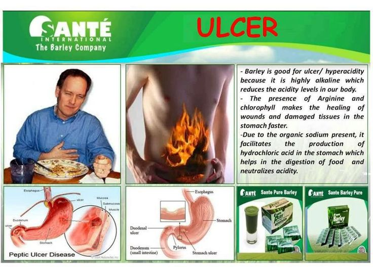 How Can I Cure My Acid Reflux Naturally
