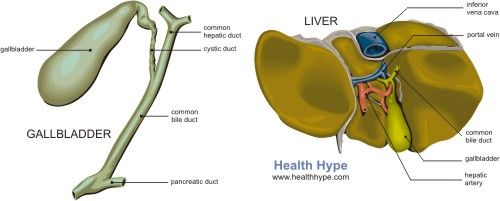 Bile duct stones ~  There are two different types of gallstones – cholesterol and pigment stones.