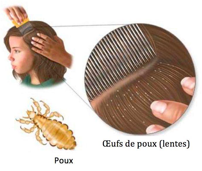 les poux sont des petites btes trs dsagrables qui salimentent de sang humain pour - Poux Sur Cheveux Colors