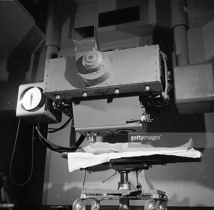 A patient lying under a Betatron machine, which directs a radiation dose to tumours deep within the body.