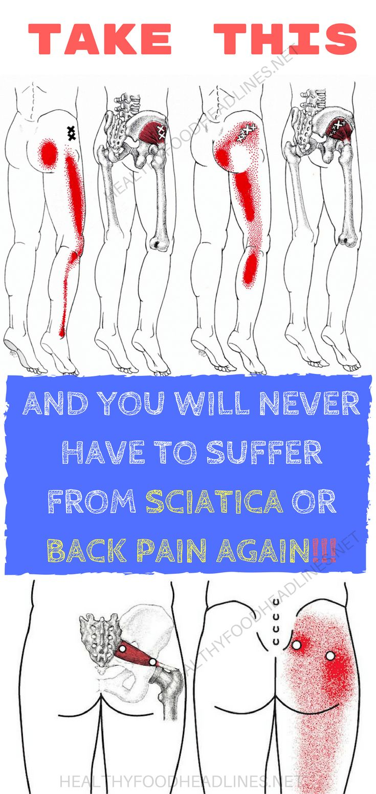 Cialis back and leg pain