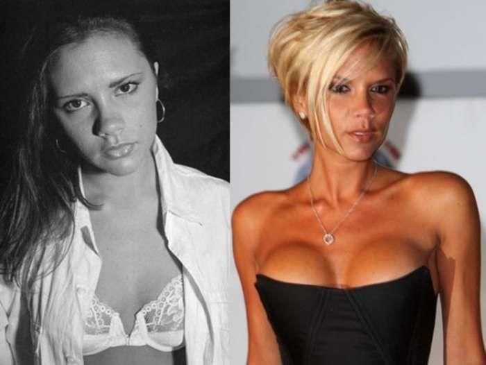 The Most Expensive Celebrity Plastic Surgeries | Celebrity