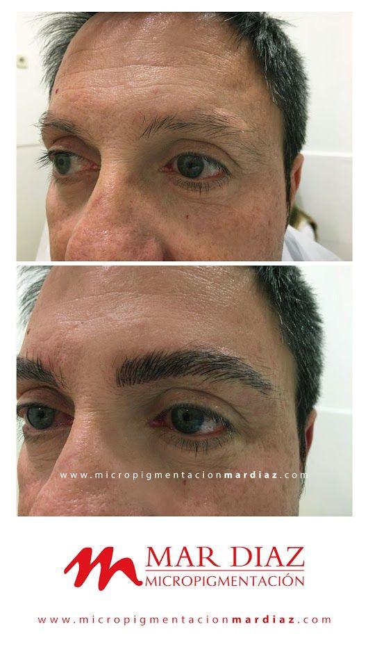 Micropigmentación de cejas masculinas con equipo Stilus 3 EVO de #Biotek. Un cambio rotundo conseguido gracias a un estudio de la mirada previo. ¿Quieres lograr este resultado en tus sesiones? WhatsApp: +34 625136770 #MicropigmentaciónMarDíaz #PMU #MarDíaz #BiotekEspaña
