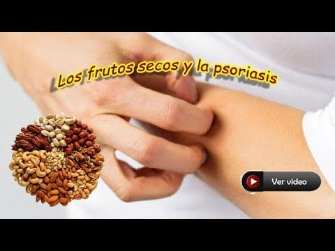 Frutos secos y la psoriasis