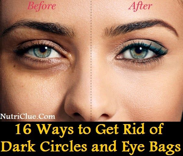 how to get rid of dark circles overnight fast