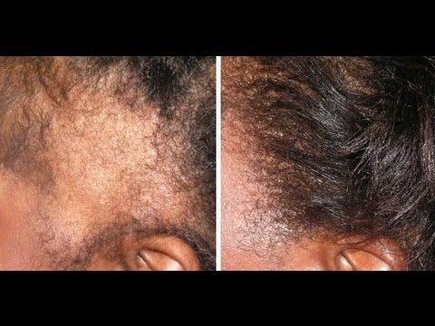 How To Grow Your Edges Back In 2 Weeks You