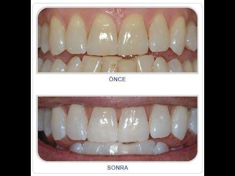 Doğal Diş Beyazlatma Yöntemi - Suna Dumankaya (Şifa Market 0224 234 56 78)
