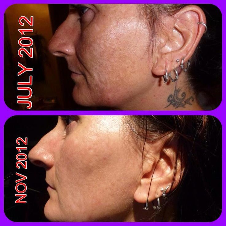Skin discoloration treated with Skincerity!