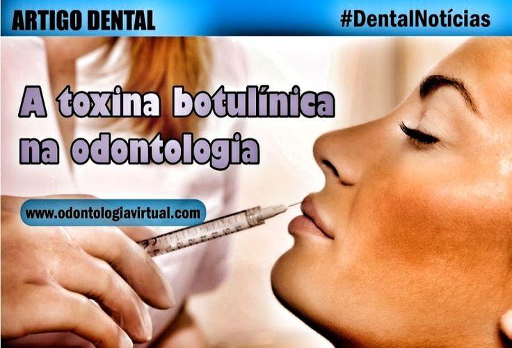 toxina-botulínica-odontologia