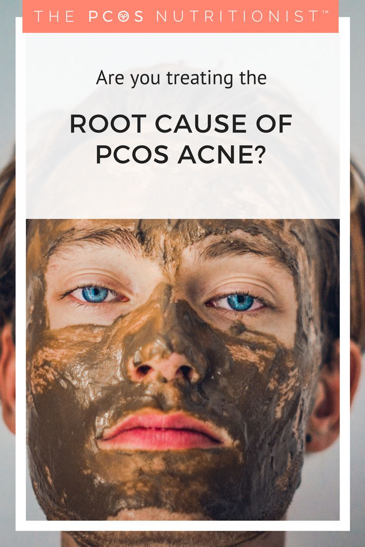 Have you been given hormonal birth control, antibiotics, spiro or accutane for your PCOS acne?  While these treat the symptoms, they do nothing to treat the root cause, and can actually make acne worse in the long term.  Read on to find out more about what you need to actually need to do to fix your imbalanced hormones and insulin resistance that cause PCOS acne
